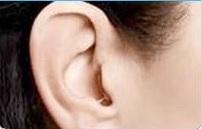 מכשיר שמיעה בתוך תעלת האוזן